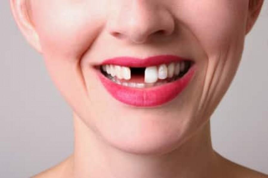 12 rossz szokás, amellyel kárt okozhatsz a fogaidban!